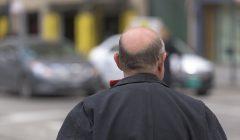 השתלות שיער פתרון מושלם לקרחת שלך